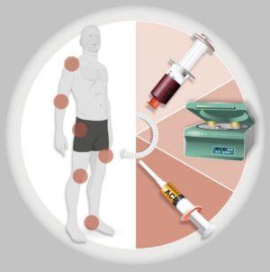 Accelerează vindecarea leziunilor cartilaginoase, musculare sau articulare cu propria ta plasmă!